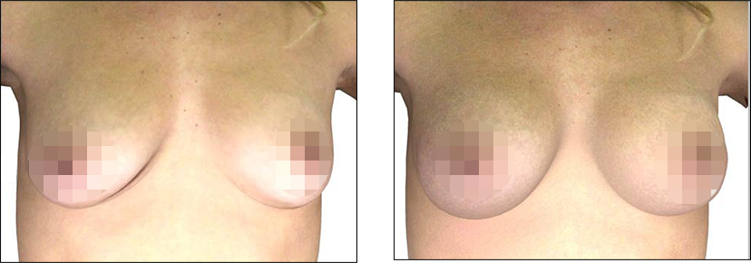 Real Crisalix Patient Before and After Treatment