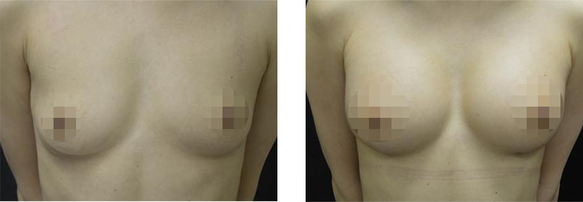 Female Crisalix Patient Before and After Treatment