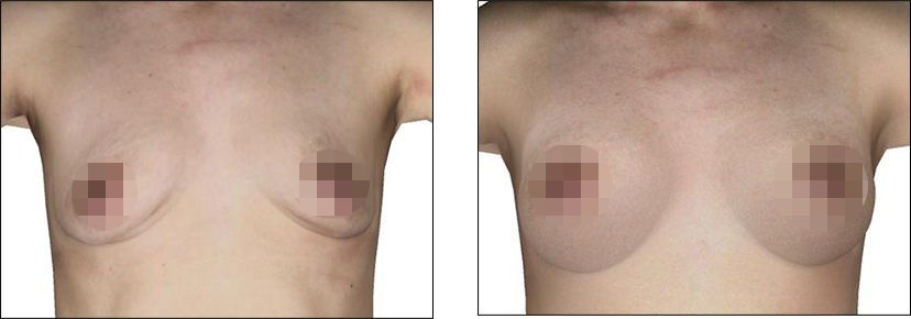 Crisalix Patient Before and After Treatment