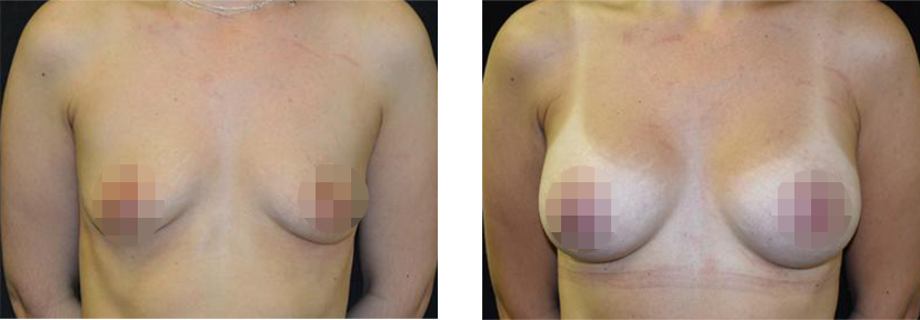 Crisalix Patient Before and After Her Treatment