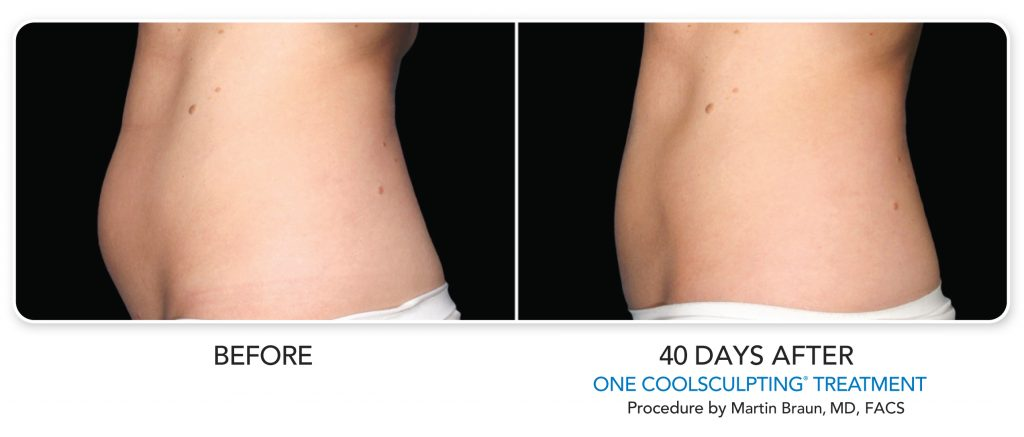 Patient's Tummy Before and 40 Days After CoolSculpting Treatment