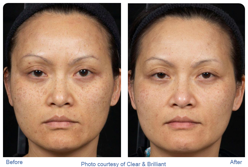 Clear and brilliant before and after photos showing asian woman with reduced sun spots