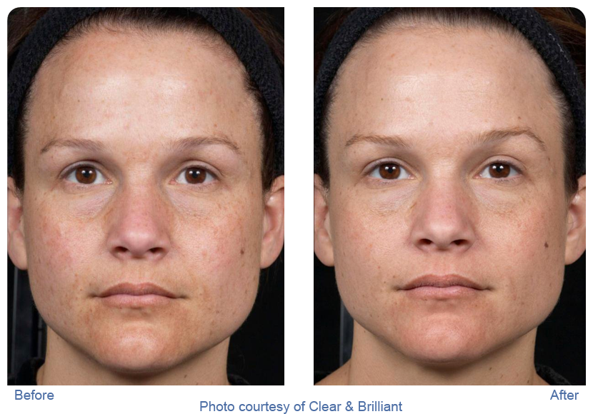Clear and brilliant before and after photos showing young woman with clearer complexion