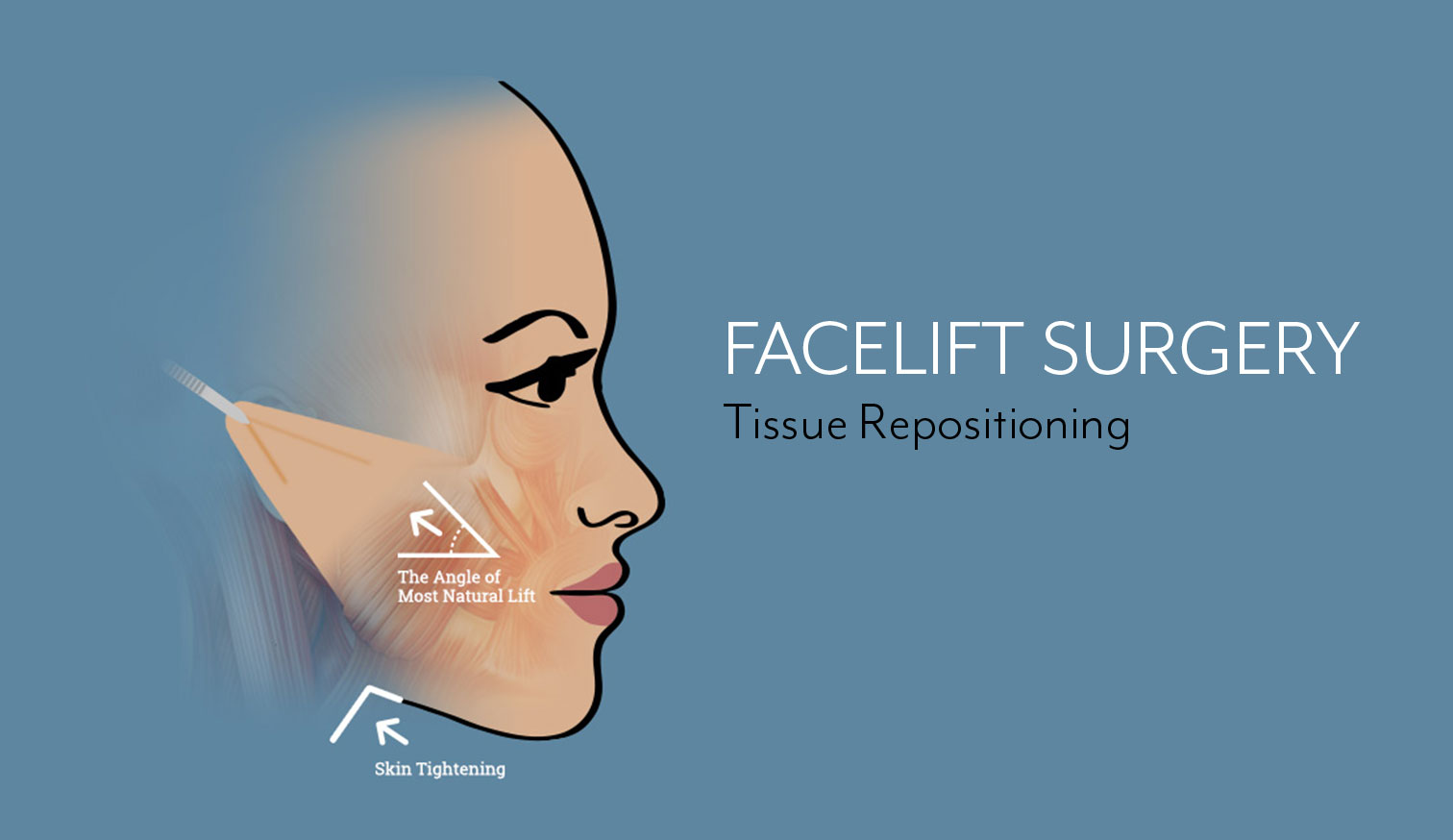 Tissue Repositioning Graphic