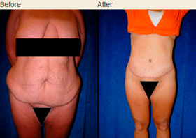 Lower Body Lift Patient's Torso Before and After