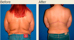 Upper body lift before and after photos showing actual patient's back