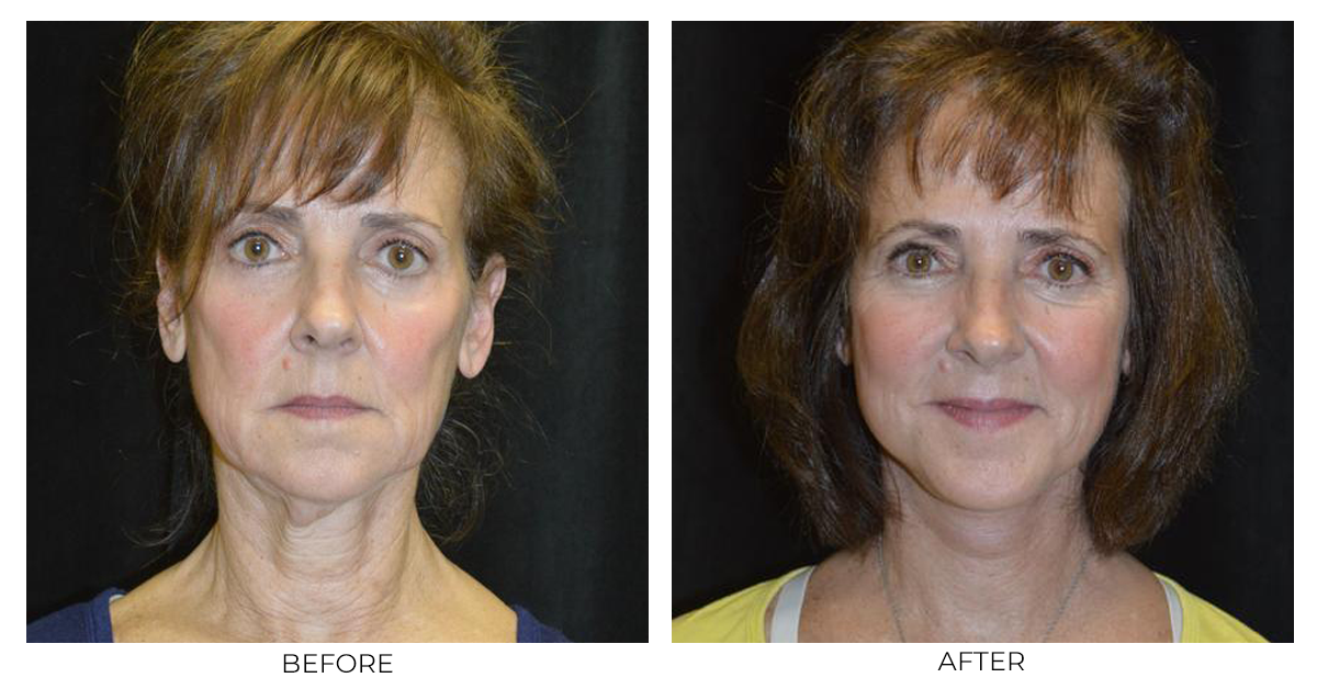 Before and after results from a facelift patient of Dr. Christopher Davidson